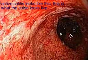 Active Ulcerative Colitis
