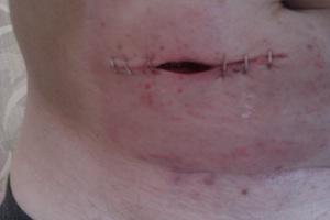 Stoma scar closing up